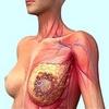 mammo-cancer